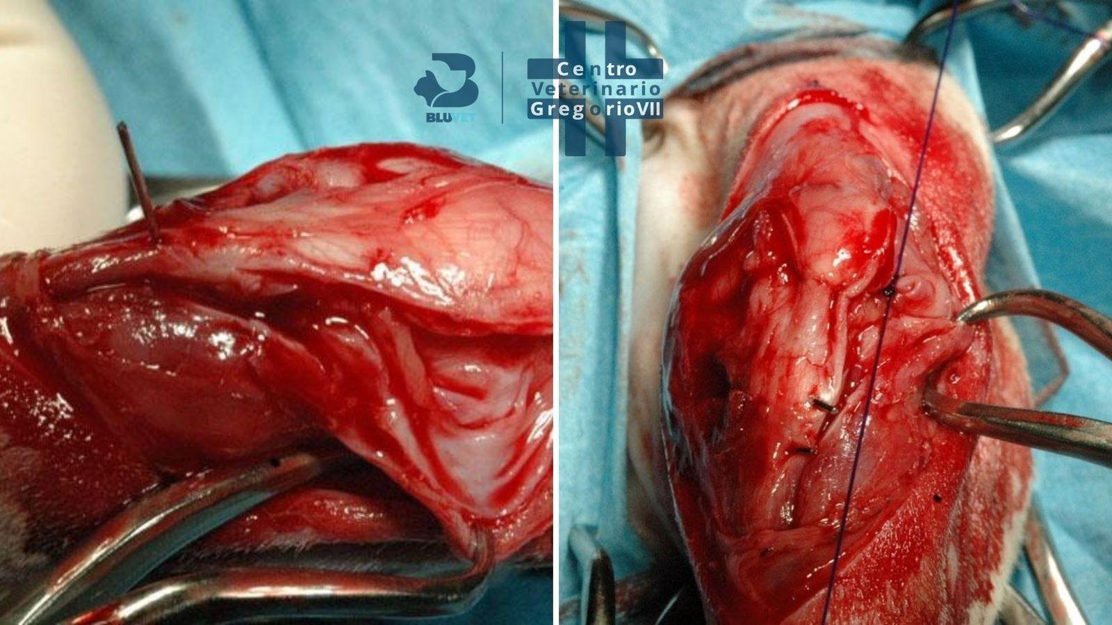 lussazione rotulea intervento fase di sutura